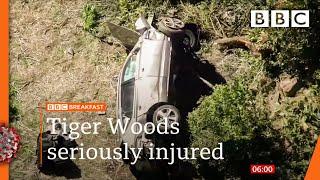 Tiger Woods undergoes surgery after car crash 🔴 @BBC News live - BBC