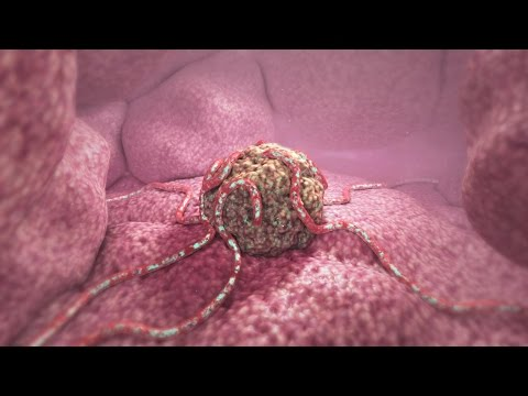 360° Tumor Death Animation (demo)
