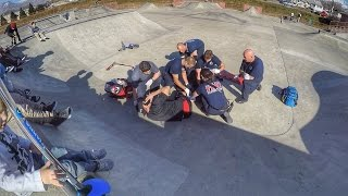 DAD BREAKS HIS LEG IN TWO PLACES AT SKATE PARK WITH FOUR KIDS