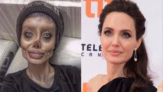 Cette femme a subi plus de 50 opérations pour ressembler à Angelina Jolie