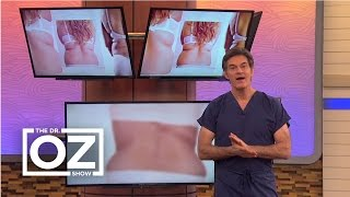 Dr. Oz's Fix for Back Fat in Women