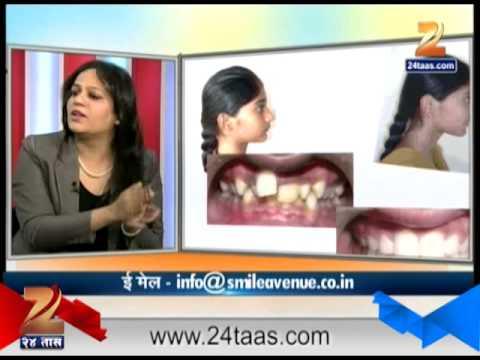 हितगुज - दंतपंक्ती दातांचे सौंदर्य