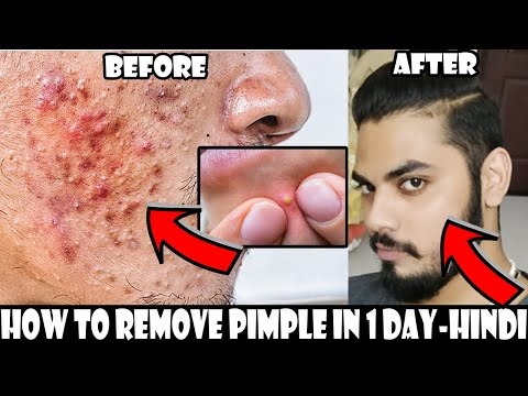 How To Get Rid of a Pimple In One Day | Homemade Pimple & Acne Treatment | Asad Ansari