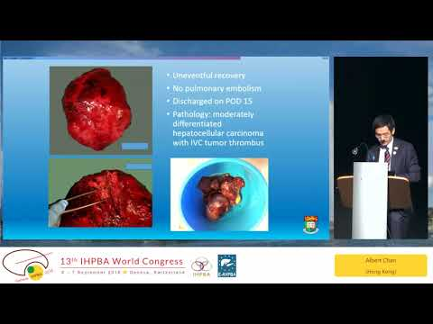 SS09.5 IHPBA Meets ILCA: New Therapies for HCC