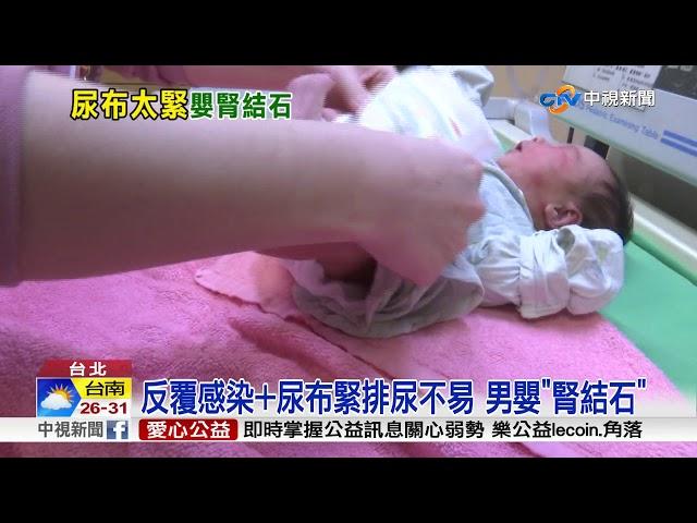 """驚!尿布包太緊 10月大男嬰罹患""""腎結石"""""""