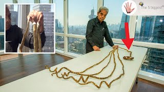 Longest Nails in The World Left My Hands PERMANENTLY Handicapped! Cut After 66 Years!~ Body Bizarre!