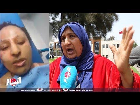 جنس وشذوذ وانتقام أم البطلة المغربية المحروقة تكشف تفاصيل مثيرة