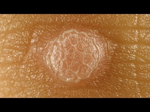 Wart removal: genital warts treatment at home