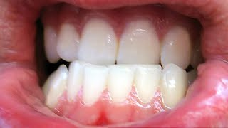 How To Stop Grinding Teeth At Night Naturally