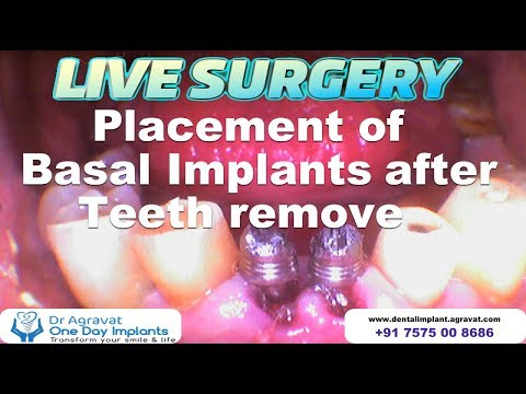 Live Surgery - Lower Front Mobile Teeth remove & Replacement with Basal Implants   How dental Implants surgery are Done in Ahmedabad, India.