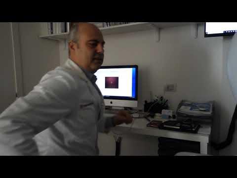 Video 72ol-WPcTNQ