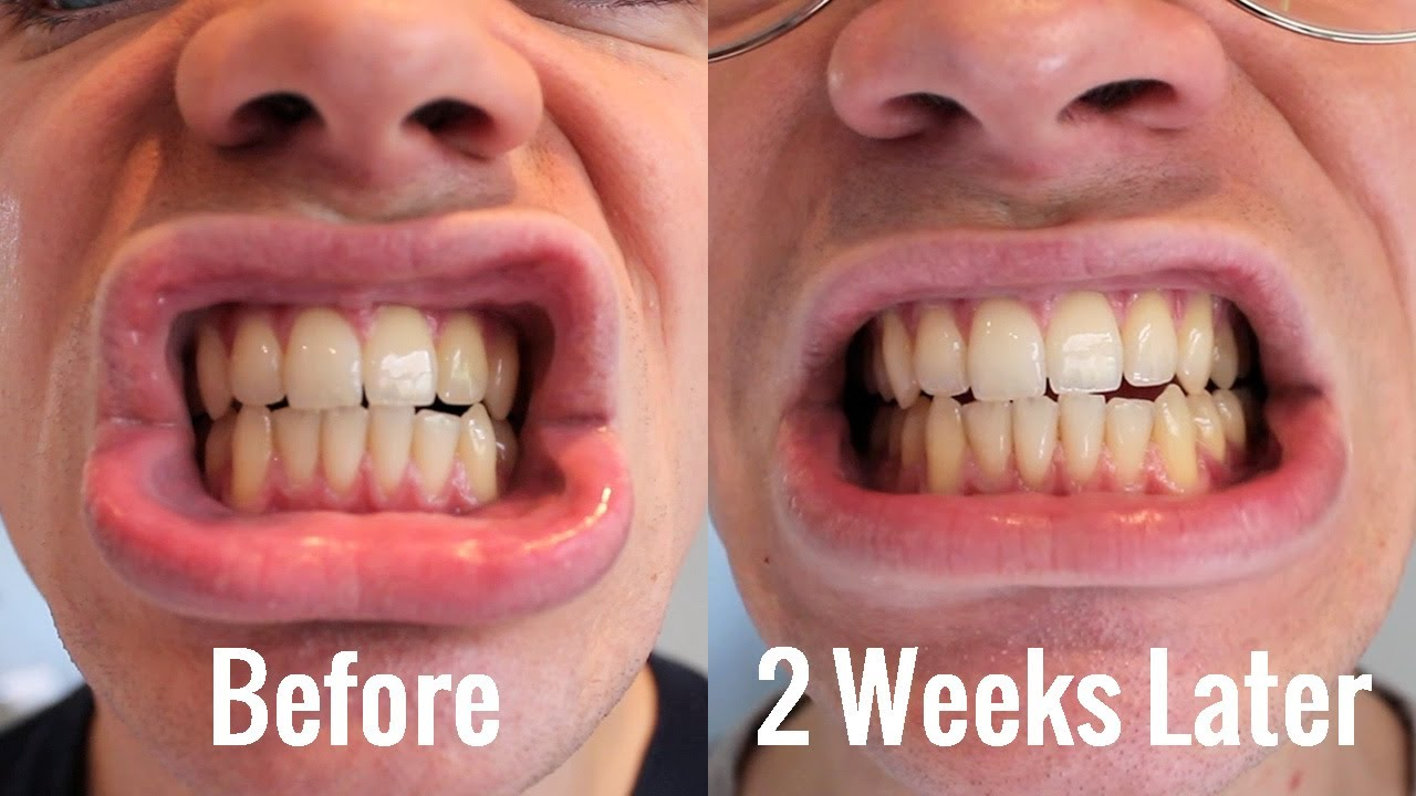 Teeth Whitening Blanx White Shock With Led Bite Review