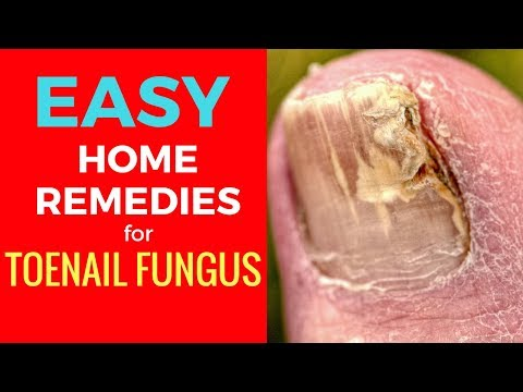 Nail Fungus Treatment Try These Home Remedies for Toenail Fungus