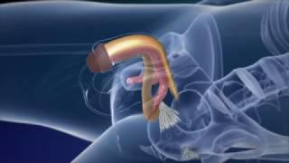 Phẫu thuật chuyển giới từ nam sang nữ như thế nào