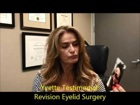 Revision Droopy Eyelid Ptosis Surgery