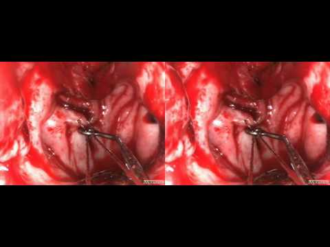 visionsense 3D endoscopic Clival Biopsy SBS