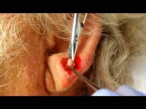 Earlobe cyst removal 8-14-2012 - YouTube