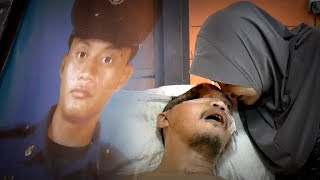 Accident leaves man with half a skull
