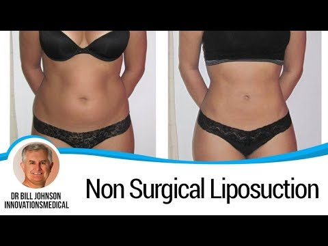 How Does Liposuction without Surgery