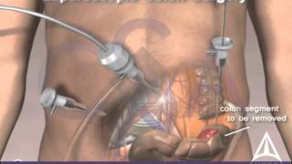 Colorectal Cancer Surgery 3d Medical Animation Laparoscopic Procedure Youtube