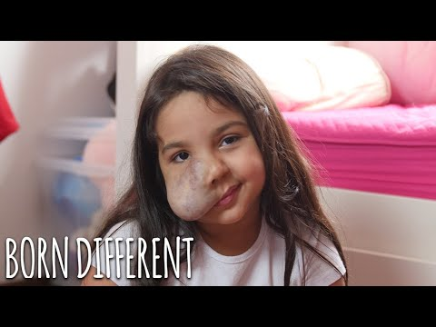 6-Year-Old With Facial Tumour Gives Make-Up Tutorials | BORN DIFFERENT