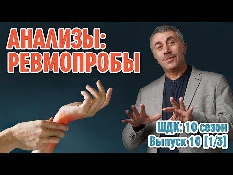 Анализы: Ревмопробы - Доктор Комаровский