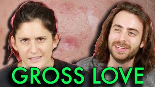Gross Things People Do For Love