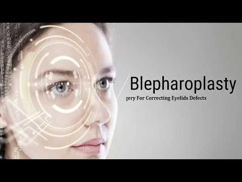 Blepharoplasty - A Plastic Surgery For Correcting Eyelids Defects
