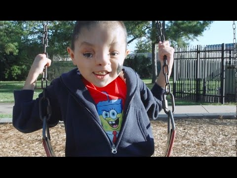 Facing the World: Reyli's Cleft Palate Journey