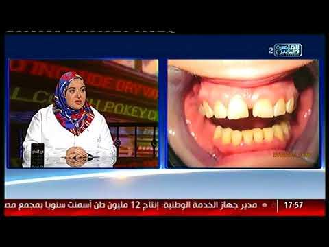 الناس الحلوة | اللمسات الفنية فى عالم وتجميل وزراعة الأسنان مع د/ إسراء أحمد السعيد