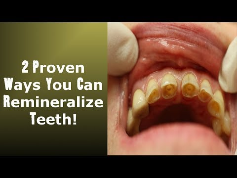 2 little known ways to achieve tooth reminerization