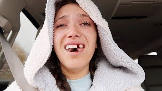 i got my front tooth & wisdom teeth removed (vlog + story)