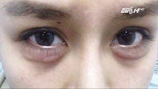 (VTC14)_Nguy cơ từ việc tiêm chất nâng mũi, độn cằm