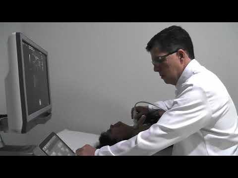 Assista ao vídeo e saiba mais sobre a Elastografia