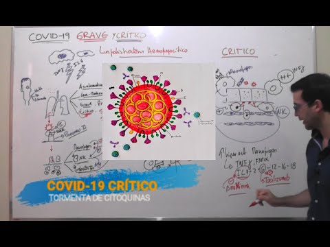 COVID 19 CORONAVIRUS FISIOPATOLOGIA GRAVE CRITICO y TORMENTA DE CITOQUINAS