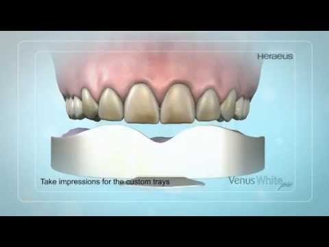 Venus White Pro at-home whitening system with custom-fit trays from Studio Dental