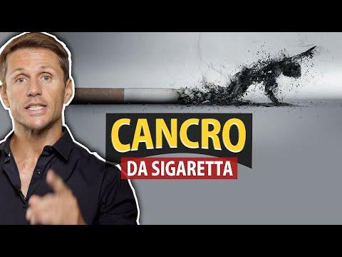 CANCRO da fumo di SIGARETTA: cosa dice la legge   Avv. Angelo Greco