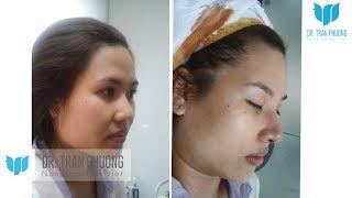Bác sĩ Trần Phương: Hoàn thiện dáng mũi bằng phương pháp nâng mũi cấu trúc