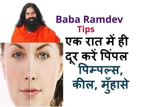 एक रात में ही दूर करें पिंपल  Baba Ramdev Tips  Remove Pimple In One Night in Hindi