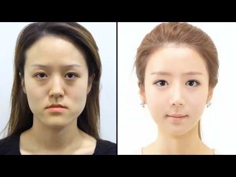 KOREAN TWINS UNRECOGNIZABLE AFTER PLASTIC SURGERY?