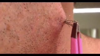 Largest Ingrown Hair Removal Compilation ||2018|| Most Satisfying