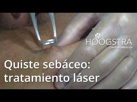 Quiste mucoso en vulva - caso 1 - vulvoscopia - Dra Teresita Audisio ...