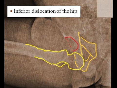 Inferior hip dislocation (Luxatio Erecta Femoris)