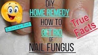 DIY Fingernail Fungus Treatment- Home Remedy - Please read the description