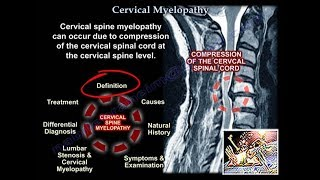 Cervical Myelopathy - Everything You Need To Know - Dr. Nabil Ebraheim
