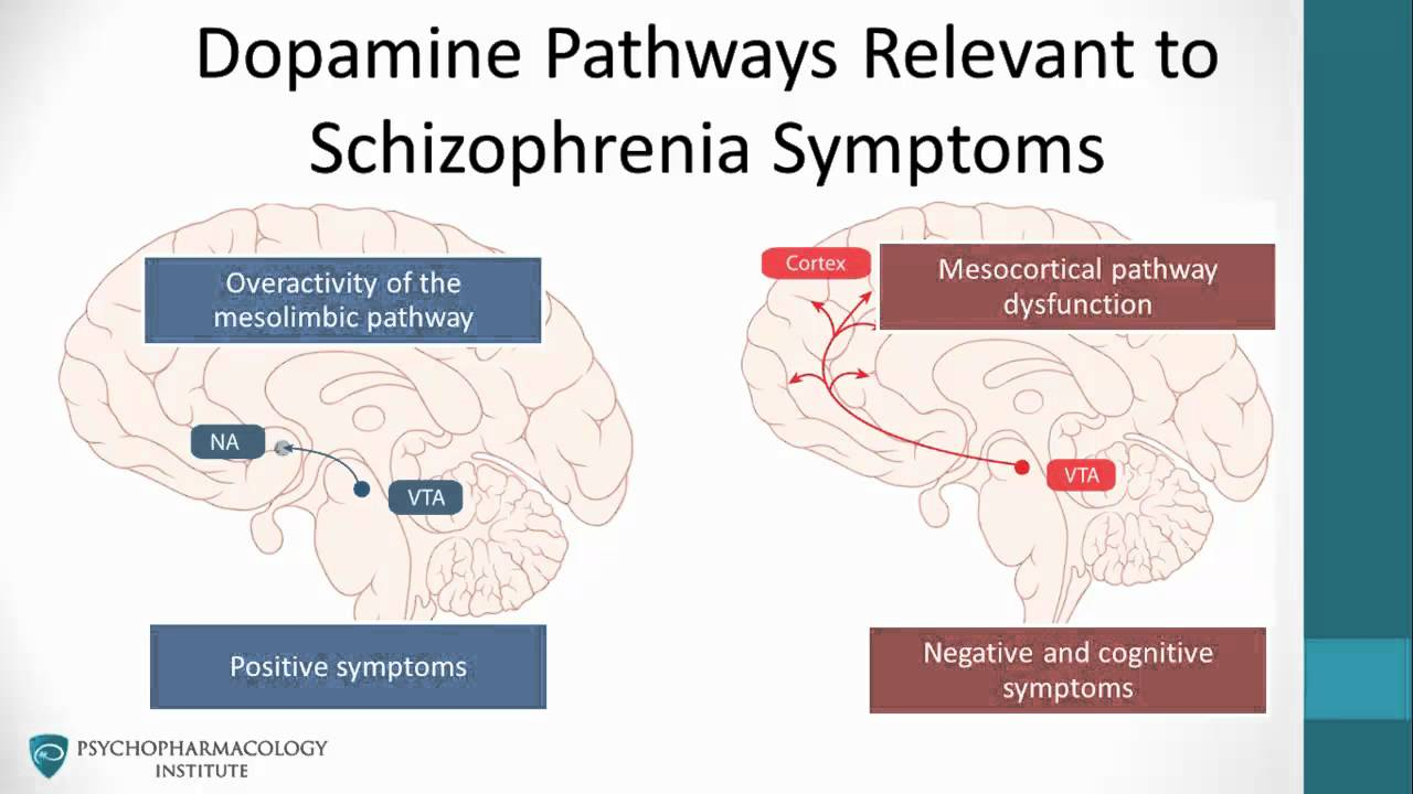 What Is the Dopamine Hypothesis of Schizophrenia?