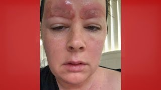 Could This Happen to You?: Microblading Gone Wrong | The Doctors