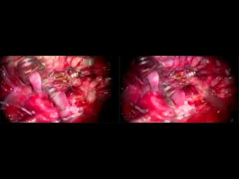 Microsurgical Treatment of Fusiform Middle Cerebral Artery Aneurysms: Technique