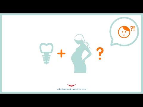 Si può ricorrere all'implantologia durante la gravidanza?