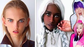10 Unusual People with UNIQUE Features!